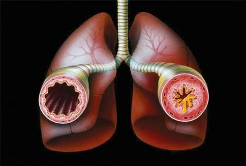 Bronquite asmática