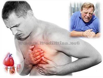 hoe krijg je een hartaanval