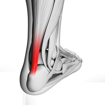 Impacto por muscular na lesão panturrilha