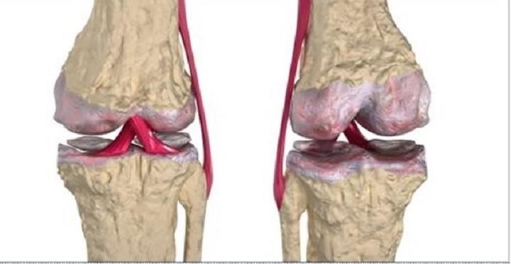 artrite_-_cartilagem_-_osteoartrite_-_articulacoes