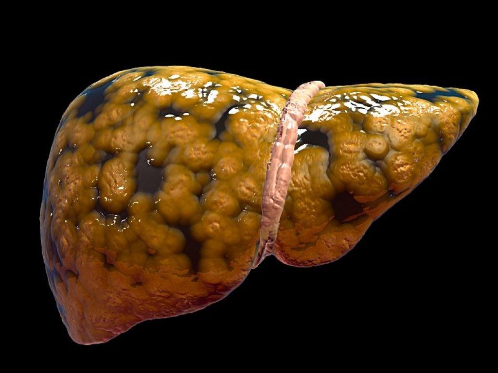 Gordura-no-Fígado-Dr-Juliano-Pimentel-1.jpg